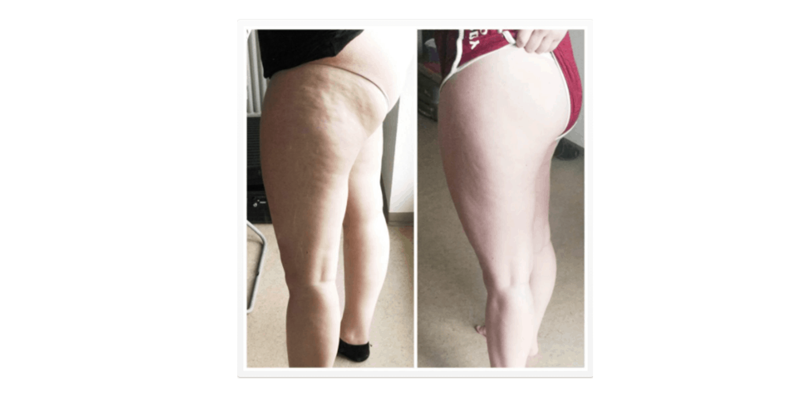 My Cellulite Solution results