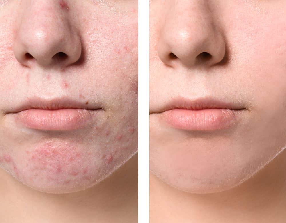 nuGlow-RGB-Light-Therapy-Skincare