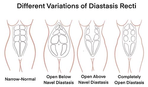 Diastasis Recti - Pelvic Floor Strong