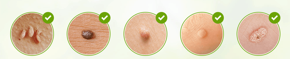 Skincell Pro Skin tag removal