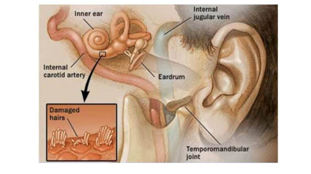 tinnitus-issue
