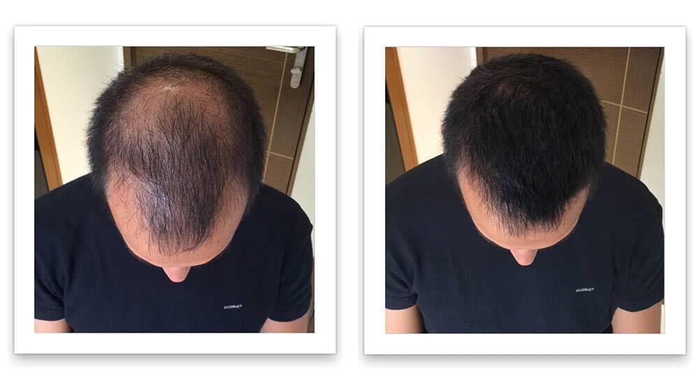 HairFortin-for-baldness