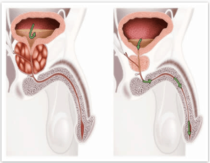 Prostate 911 for urinary infection