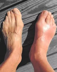 The End of Gout eBook