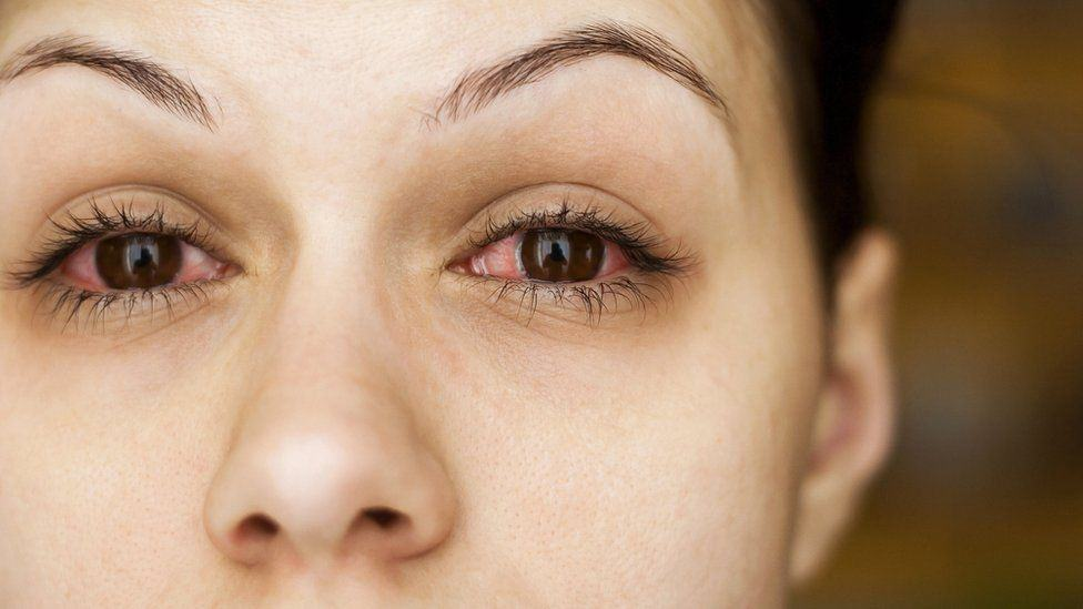 COVID-19 Contractions Through Eyes Cannot Be Ignored
