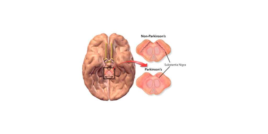 Parkinson's Health
