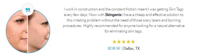 Skingenix Reviews