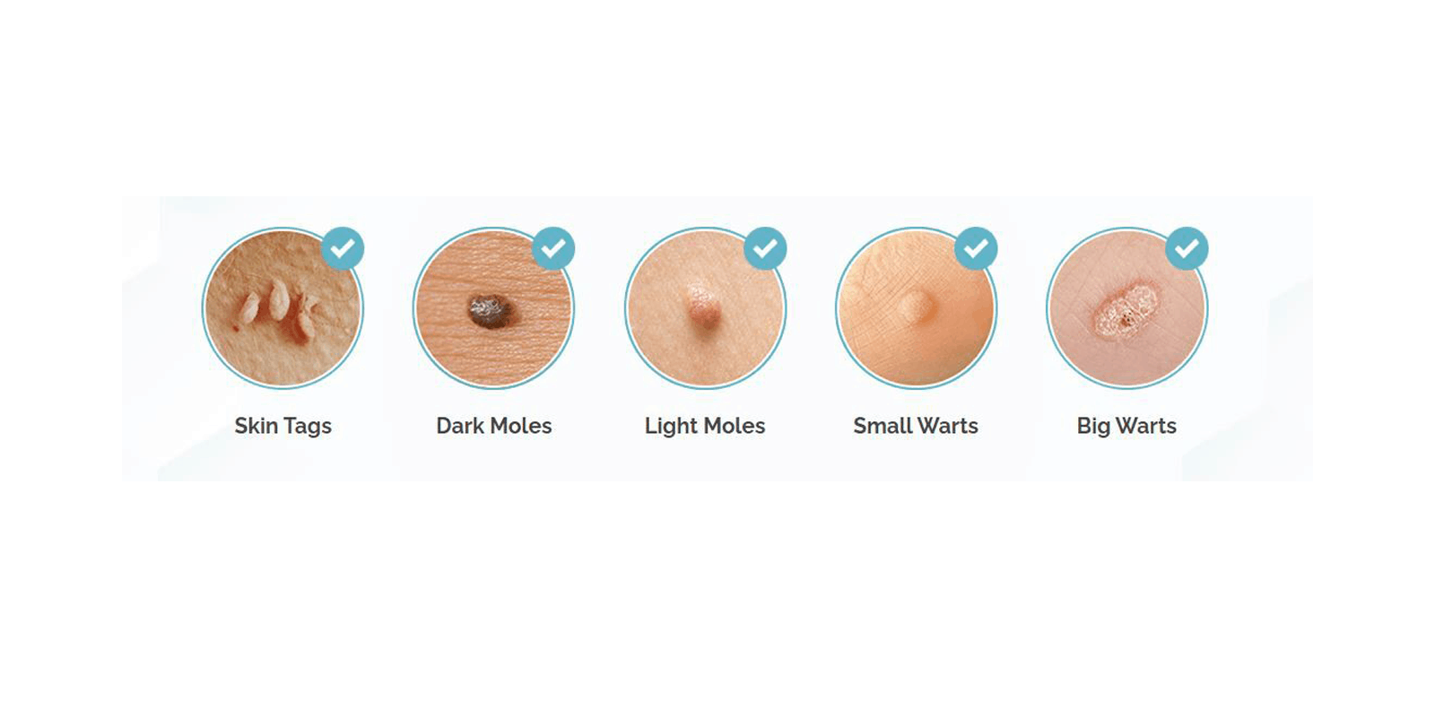 Skincell Advanced Skin Tag removal