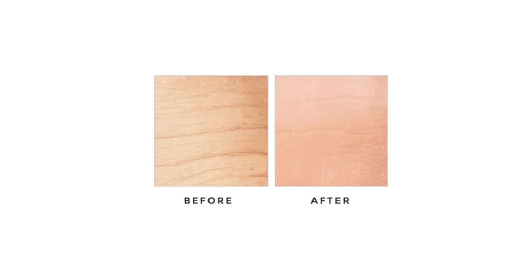Derma Progenix before & after results