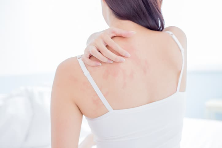 COVID 19 Skin Reactions Not Dangerous, Say, Scientists