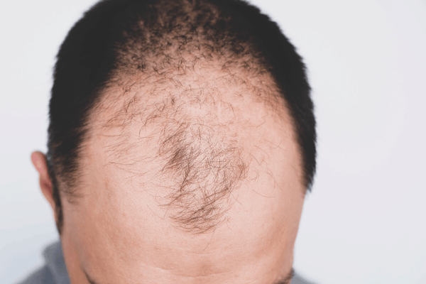 Men's COVID Risks Could Be Increased By A Gene Linked To Balding