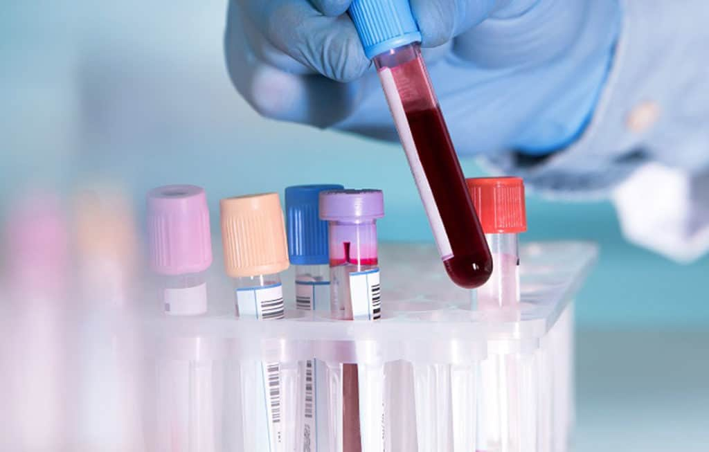 Can A Range Of Hidden Cancer Be Detected With A DNA Blood Sample?