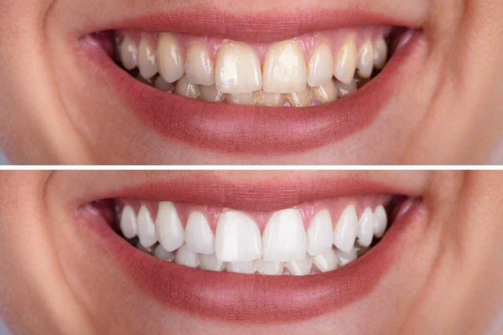 DentiViveResult