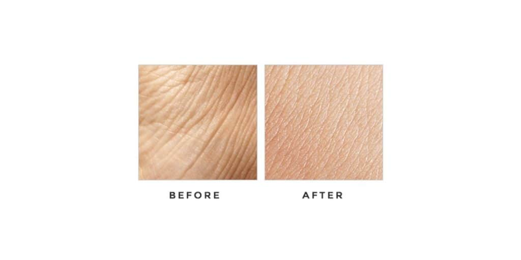 Floraison Skin Care Before & After Results
