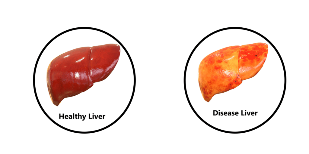Liver Health Formula by purehealth research