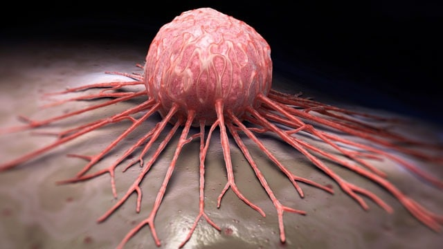 A Recent Study Has Discovered A Fundamental Denominator That Connects All Tumors