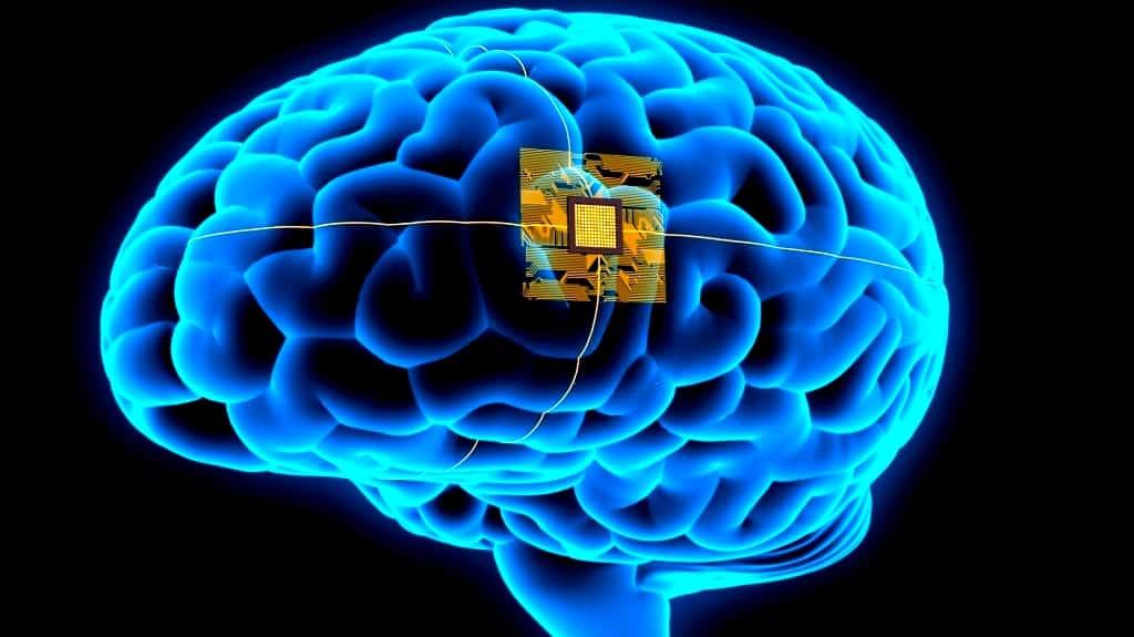 Brain Implant Helps Man 'Speak' Through A Computer