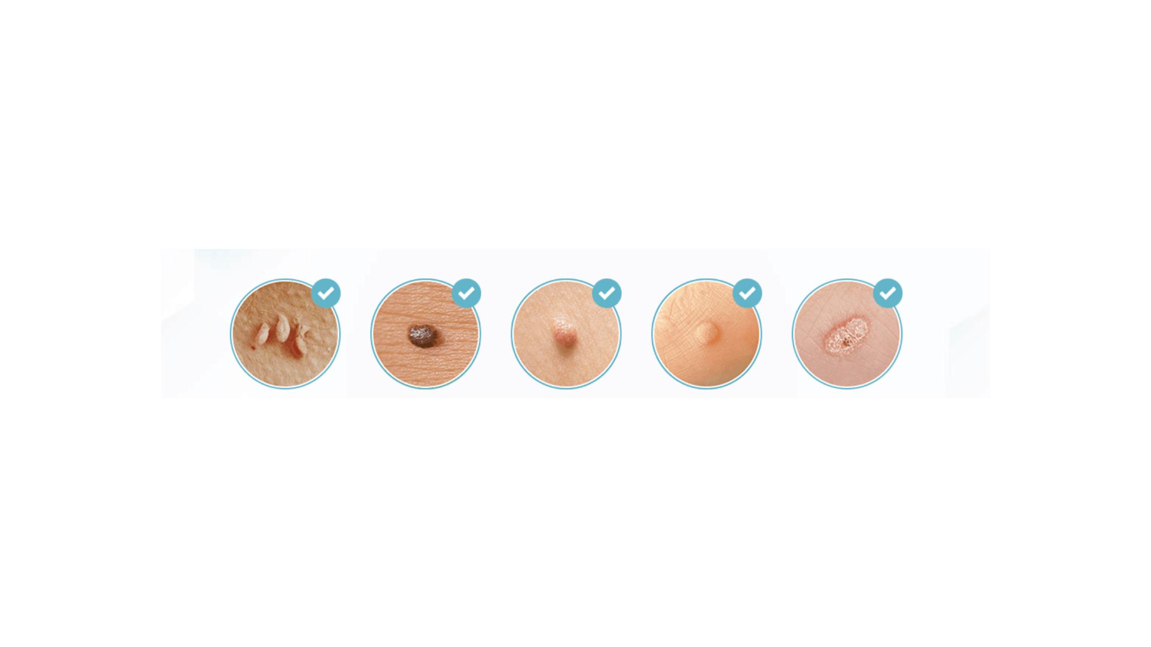 Dermicell mole & skin tag corrector serum