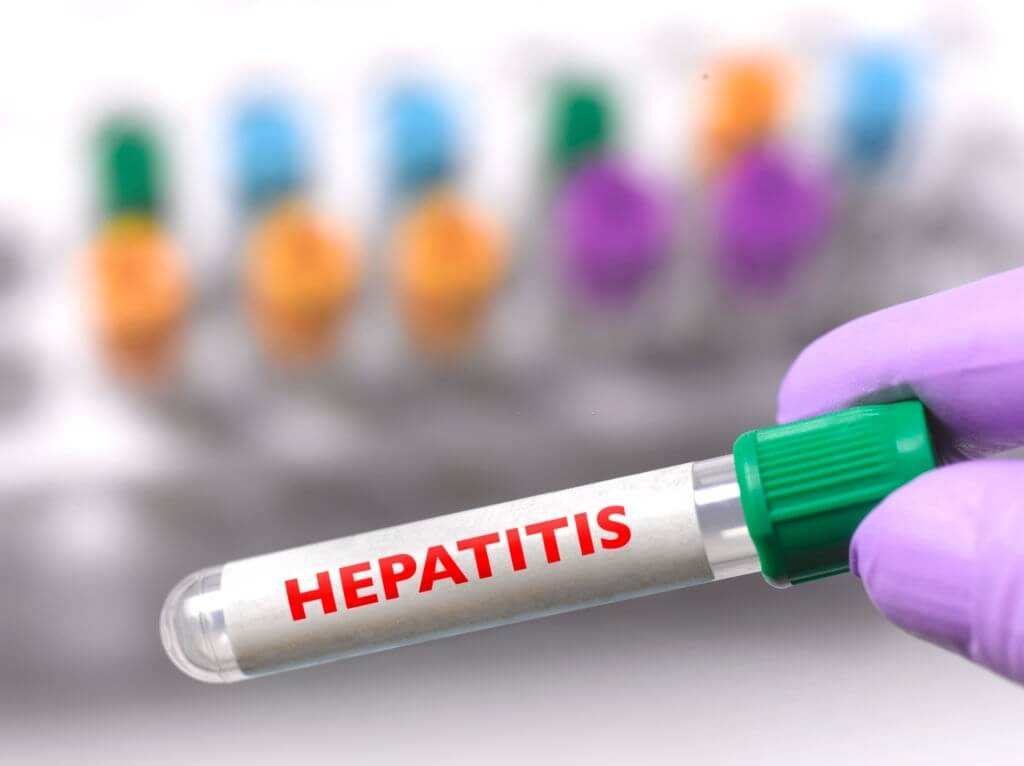 Hepatitis Medical Myths: A Look At The Facts