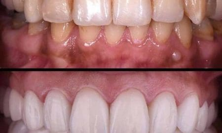 How To Remove Plaque From Teeth | Best Techniques For Your Shiny Teeth