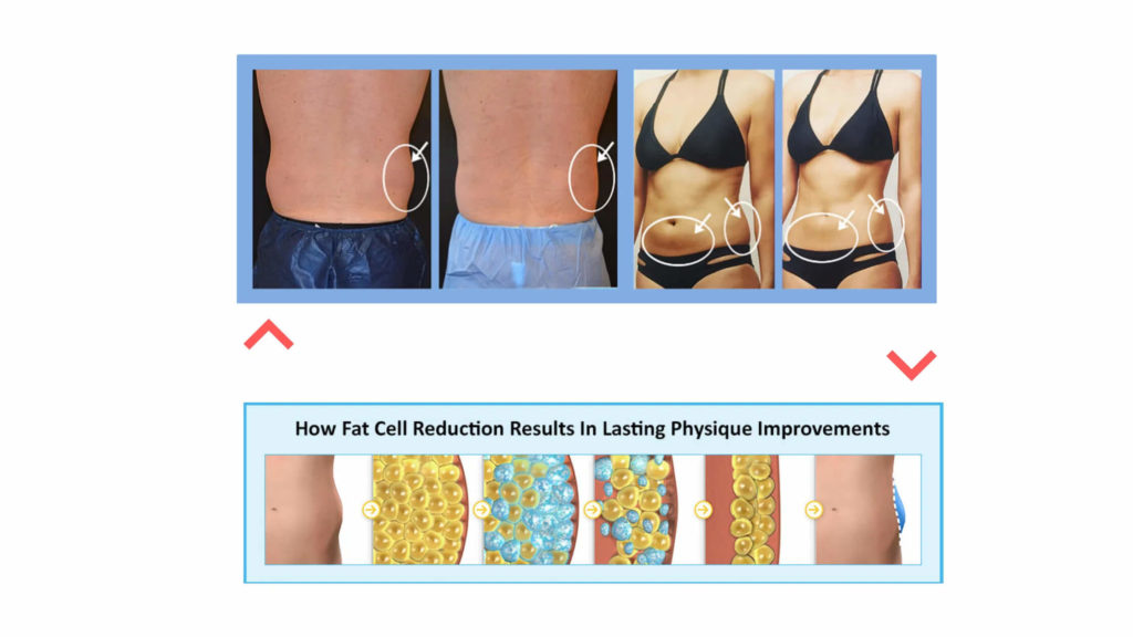 Benefits of The Fat Cell Killer Weight Loss Program
