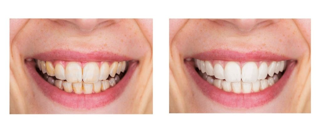 dentitox pro before and after images