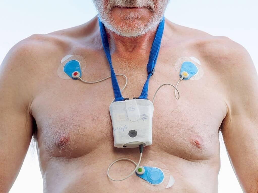 Edoxaban May Help Treat Atrial Fibrillation After TAVI