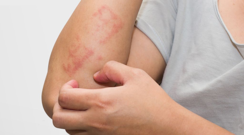 Signs And Symptoms Of Toddler Eczema, As Well As Therapy